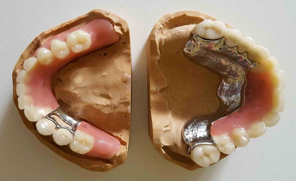 ordinacija goljak, dentures