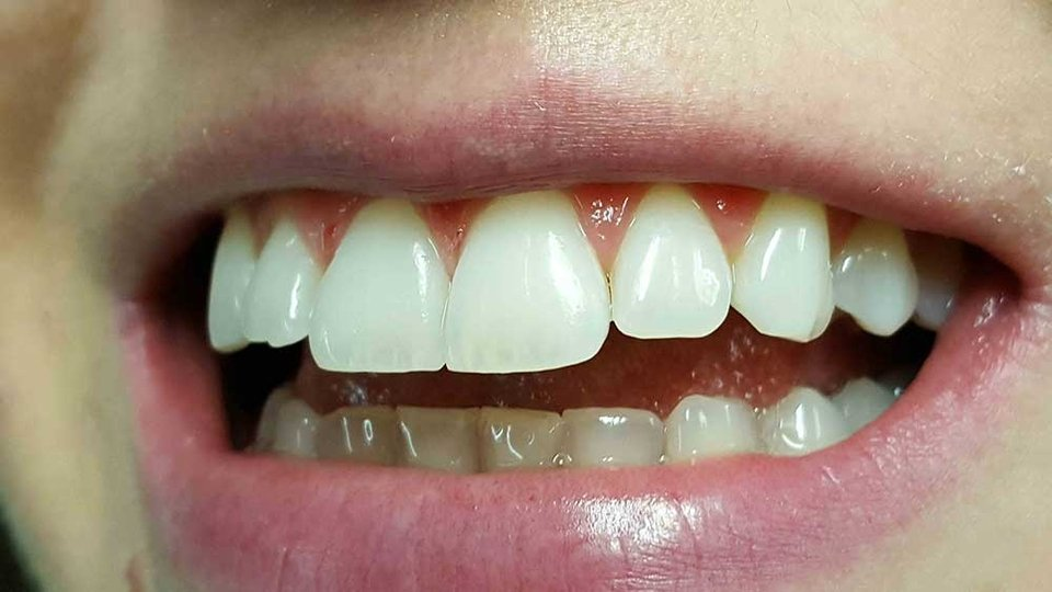 ordinacija goljak, teeth whitening, ICON