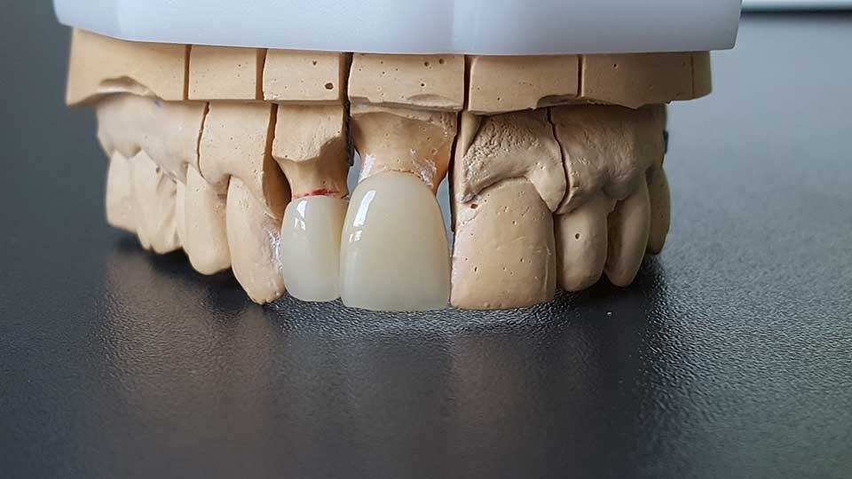 ordinacija goljak, dental bridge